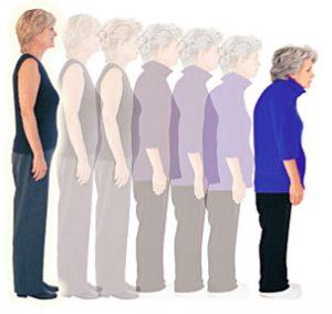 obraba hrustanca, staranje, degenerativne spremebe